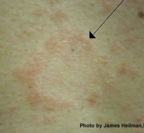What if it's not ringworm?  A look at Pityriasis Rosea