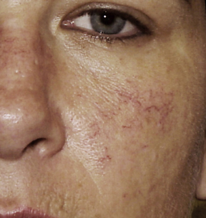 Rosacea - Treatment - NHS Choices